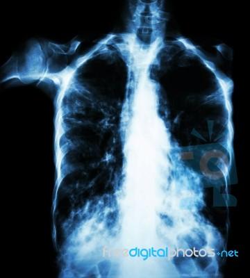 Pulmonary Tuberculosis ( Film Chest X-ray : Interstitial
